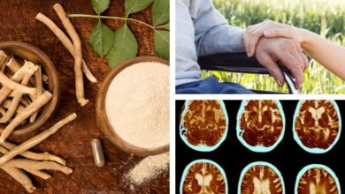 Photo of Alzheimer's Disease Herbal Treatment