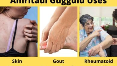 Photo of Amritadi Guggulu Benefits, Uses & Side Effects
