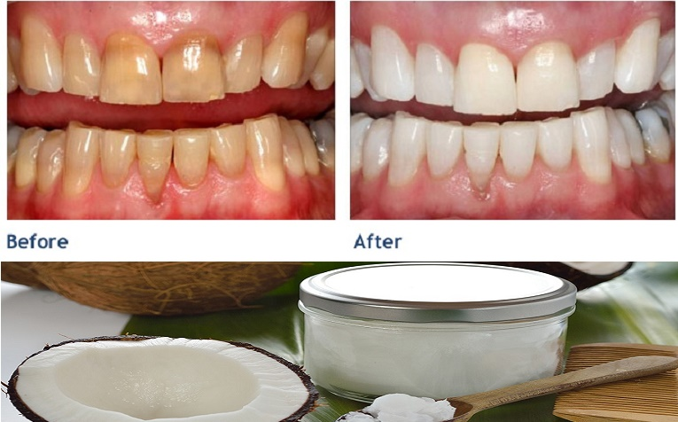 Yellow teeth and whiten teeth with coconut oil