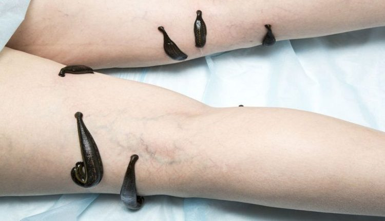 Leech Therapy - Medicinal Leeches for thrombophlebitis