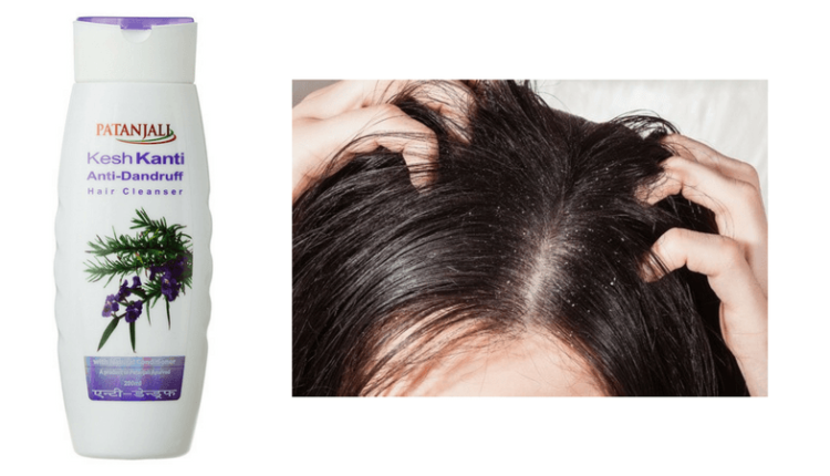 Patanjali Anti Dandruff Shampoo Review