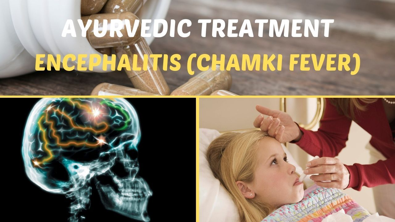 Photo of Ayurvedic Treatment of Encephalitis (Chamki Fever)